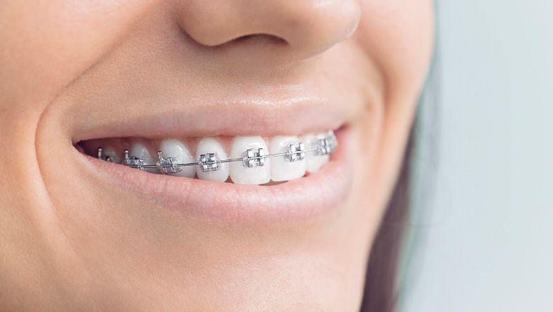 orthodontie maarif